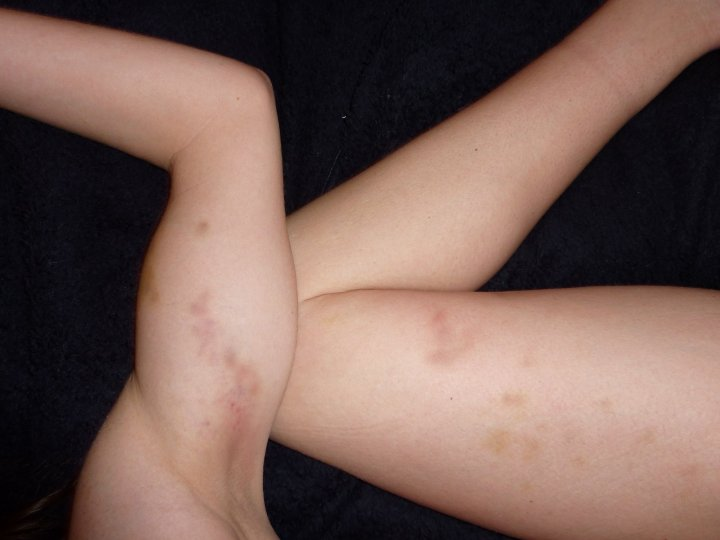 Pole dancing bruises picture